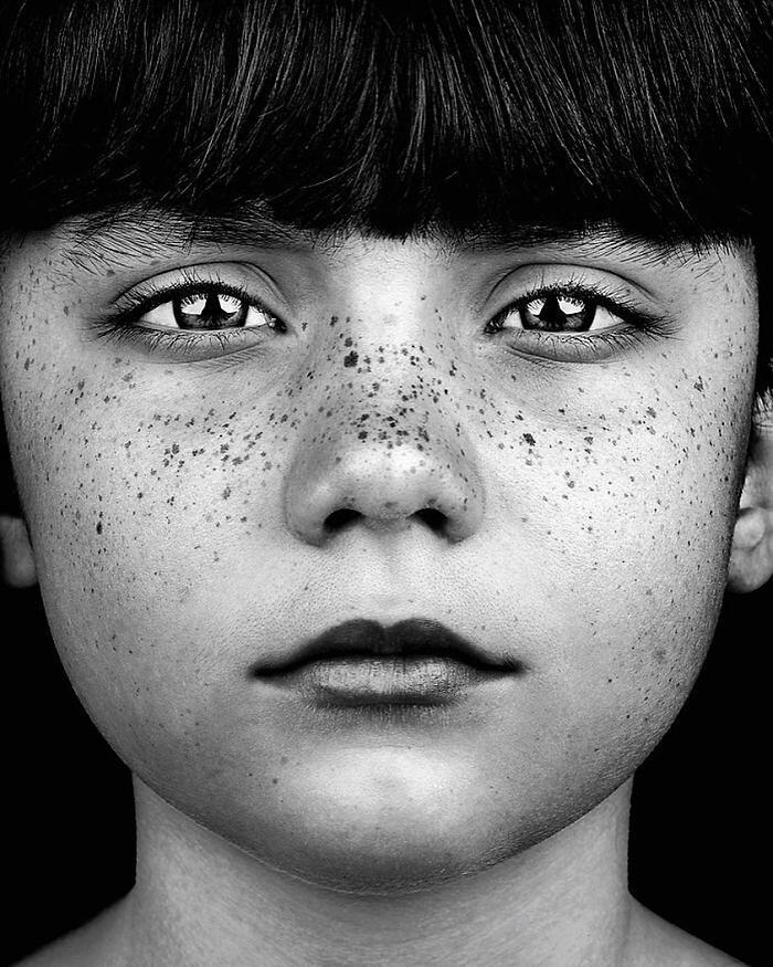 Persone Con Lentiggini Foto Di Brock Elbank