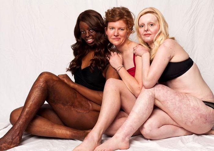 Una campagna di sensibilizzazione che incoraggia le persone ad amare se stesse con tutte le loro differenze