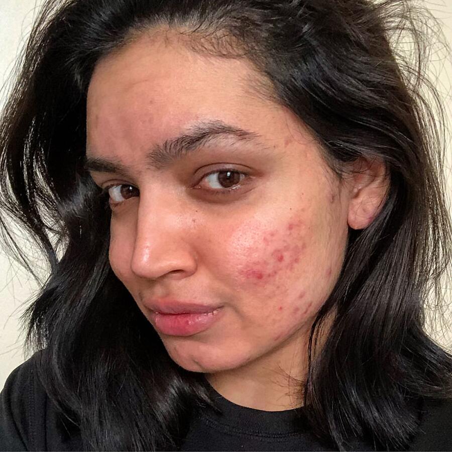 Beauty Blogger Rifiutata Da L'Oreal Perché Ha Acne Kadeeja Khan