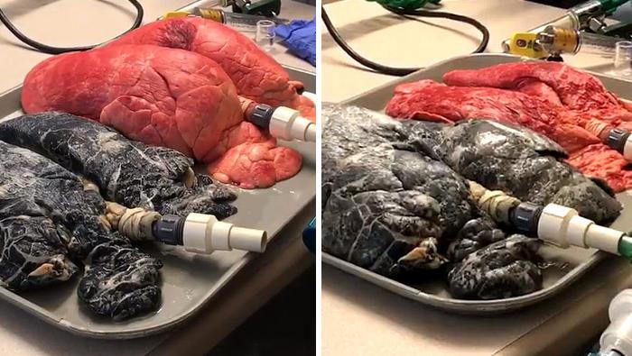 Infermiera confronta polmoni sani con quelli di un fumatore in un video scioccante