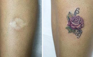 Tatuaggi cicatrici: 209 esempi di tatuaggi per coprire cicatrici con opere d'arte