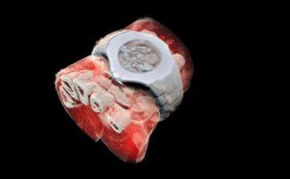 Le prime radiografie 3D a colori sono impressionanti