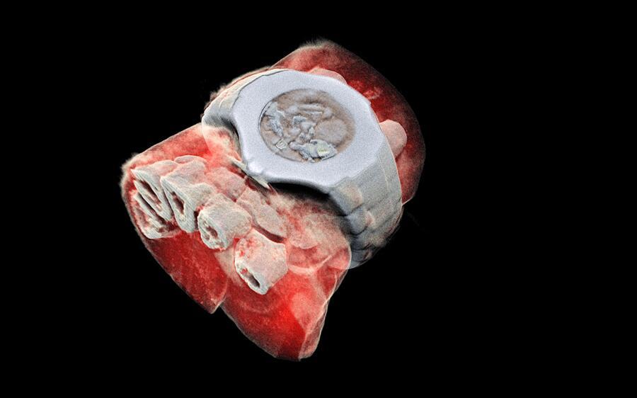 Le prime radiografie 3D a colori