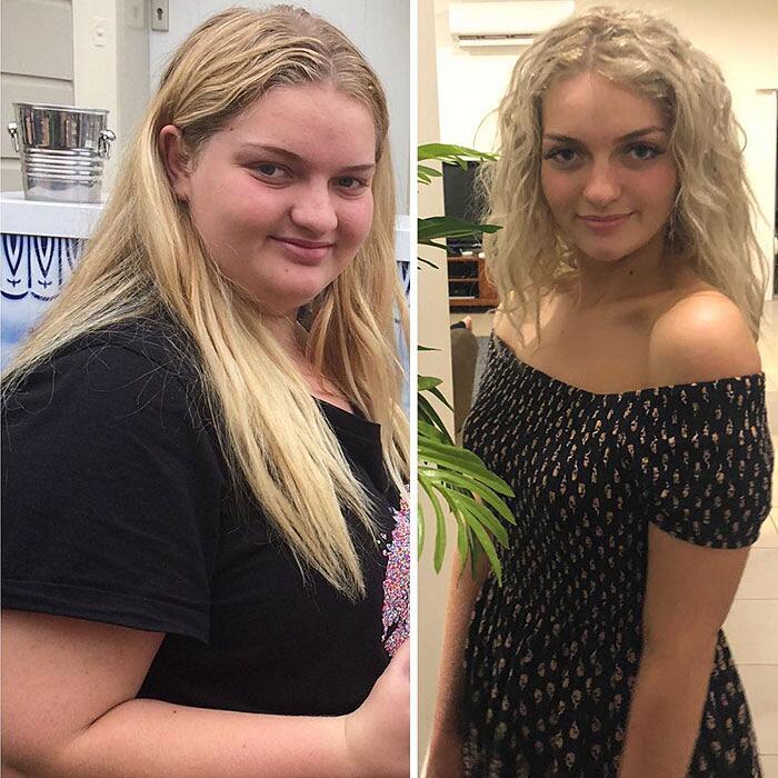 Adolescente sovrappeso perde 63 chili Josie Desgrand