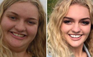 Adolescente sovrappeso perde oltre 60 kg per il ballo della scuola