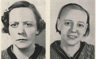 """24 foto """"prima e dopo"""" di persone sottoposte a lobotomia"""
