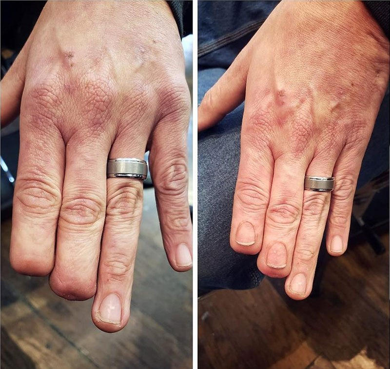 Tatuaggio Iperrealista Dita Amputate Eric Catalano