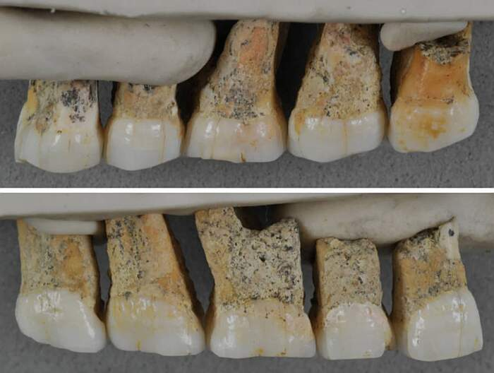 Denti dell'uomo di Callao o Homo Luzonensis