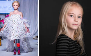 Bambina di 9 anni disabile diventa una modella al New York Fashion Week