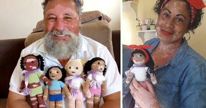 Nonno con la vitiligine crea bambole all'uncinetto per l'autostima dei bambini con questa malattia