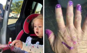 Pompieri si fanno mettere smalto alle unghie da una bambina per distrarla da un incidente