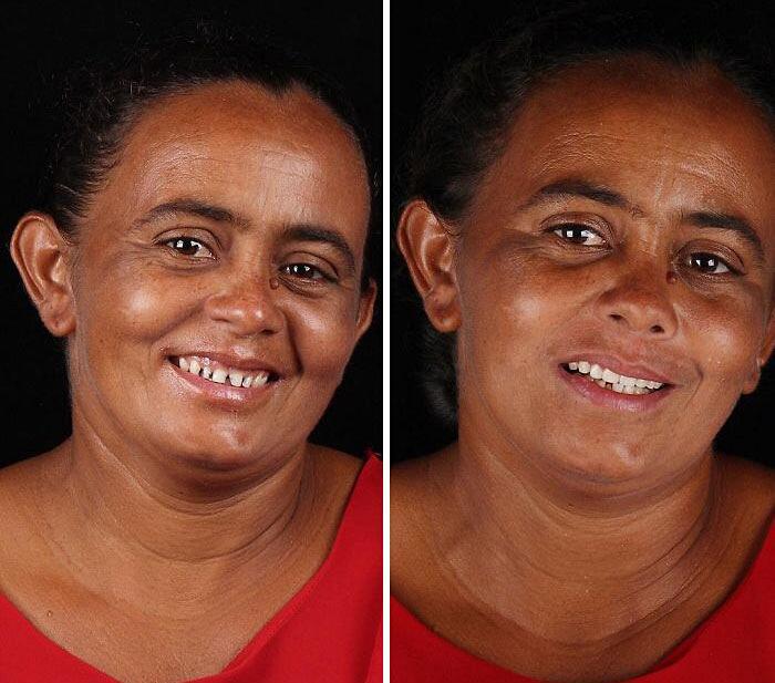 Dentista brasiliano cura gratis persone povere Felipe Rossi