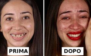 Dentista brasiliano cura gratuitamente i denti di persone indigenti, ecco i risultati