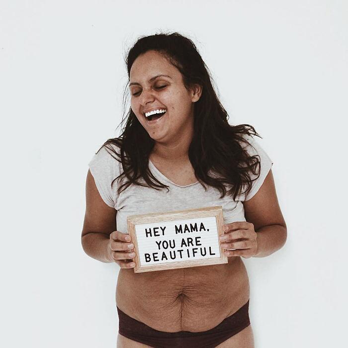 Condivide foto della sua pancia dopo il parto Brenda Stearns