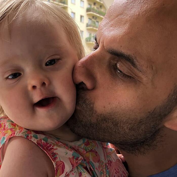 Papà single adotta bambina con sindrome di down