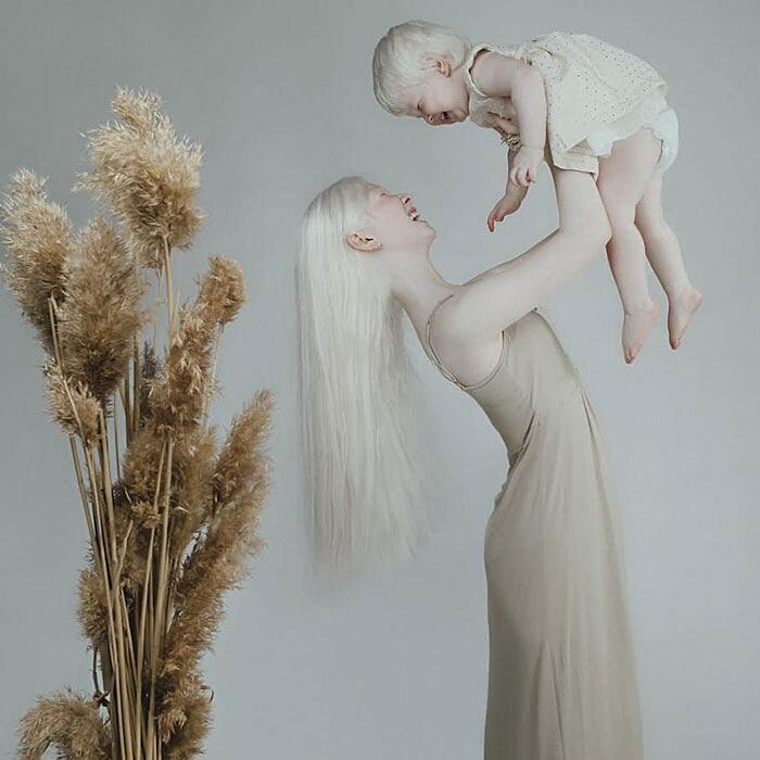 Sorelle albine Asel e Kamila Kalaganova
