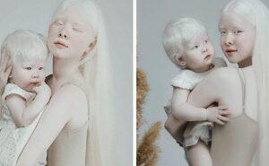 Sorelle albine nate a 12 anni di distanza stupiscono il mondo con la loro straordinaria bellezza