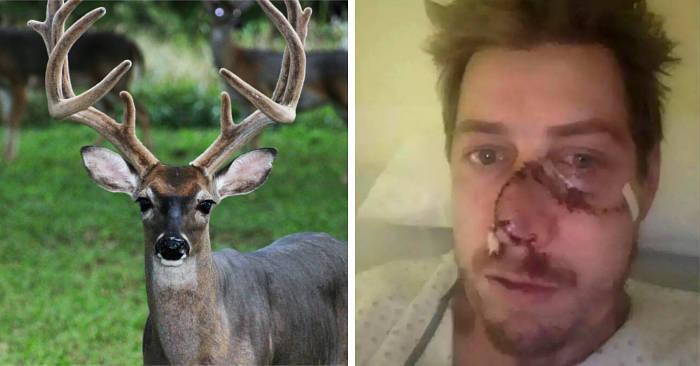 La faccia di un cacciatore viene ricucita con 50 punti dopo la collisione con un cervo in fuga