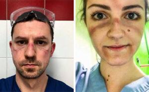31 strazianti immagini mostrano i segni della guerra condotta da medici e infermieri